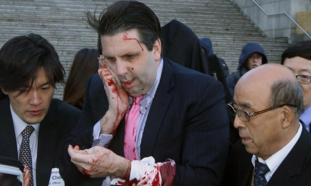 U.S. ambassador to S. Korea injured, Washington condemns act of violence